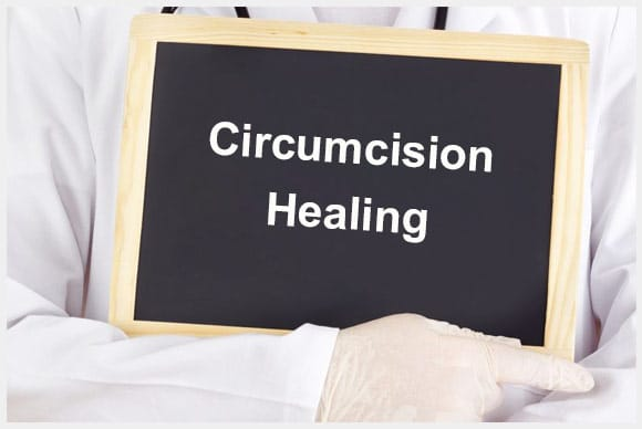 How to Cure an Infection after Adult Circumcision Surgery